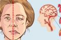 50% украинцев на знает ни одного проявления инсульта - нейрохирург
