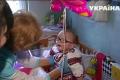 Во Львове врачи спасли уникальную девочку-