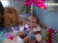 """Во Львове врачи спасли уникальную девочку-""""дюймовочку"""""""