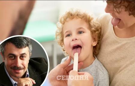 Доктор Комаровський пояснив у програмі «Ранок з Україною», як позбутися запаху з рота