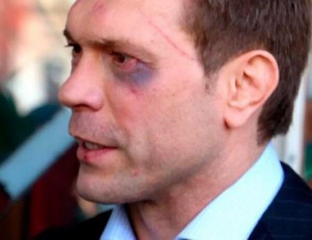 Прокуратура Луганской области призывает Царёва к ответу за сепаратизм
