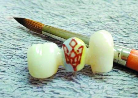 Во Львове зубной техник рисует картины на зубах у клиентов